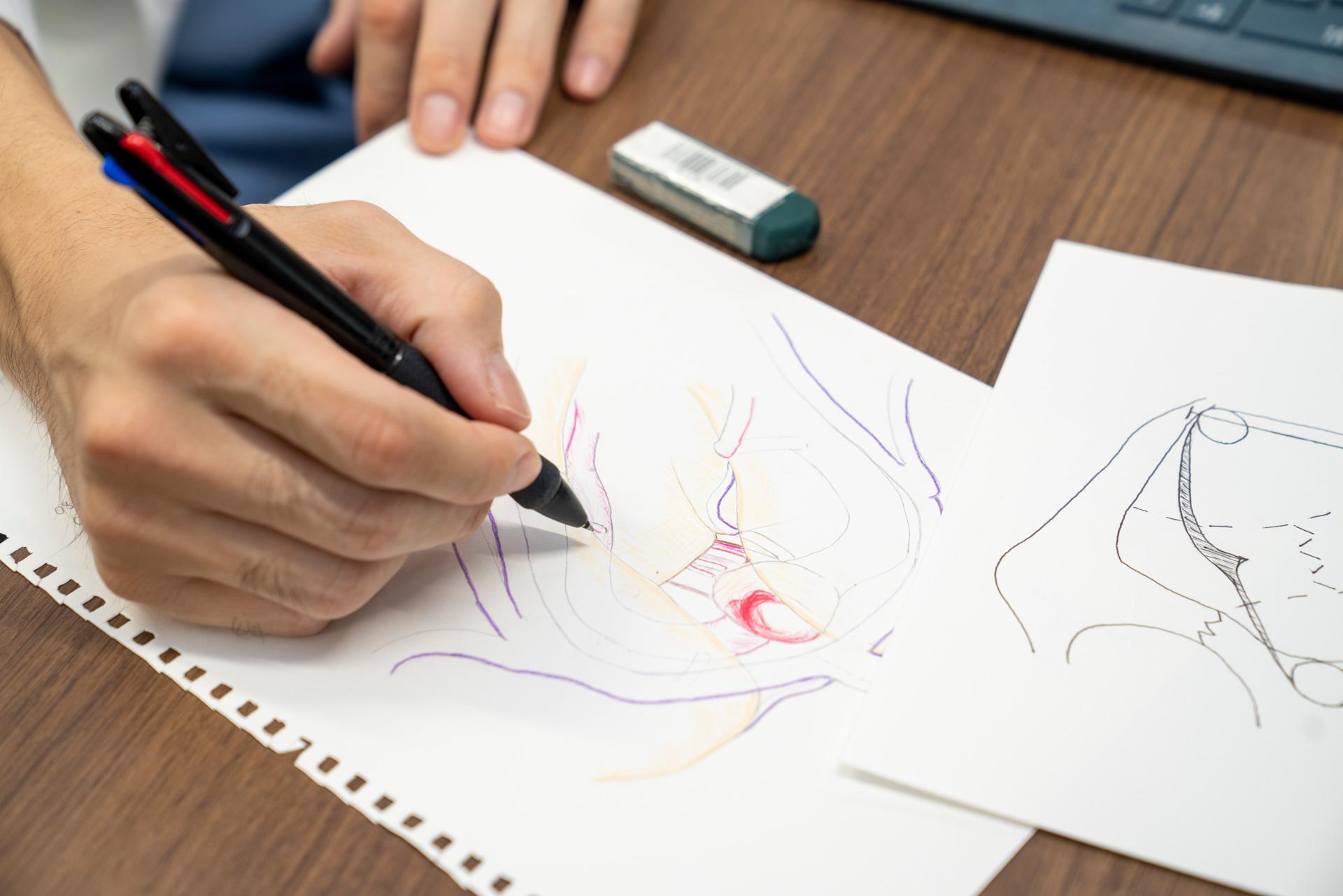 写真:医師が図を描いている手元